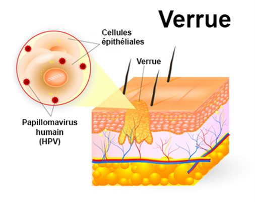 warts treatment homeopathy medicine causes of rectal cancer hpv