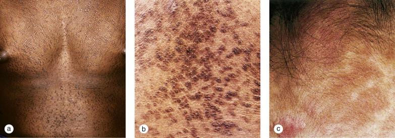 hpv warts duct tape tratament pentru paraziti la adulti