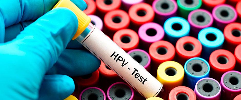 Pt toate femeile care au virusul HPV..