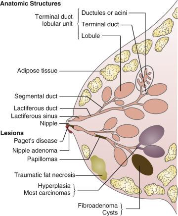 intraductal papilloma lactation
