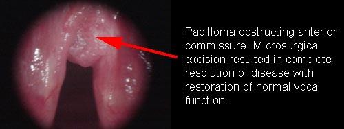 papillomavirus mouth warts