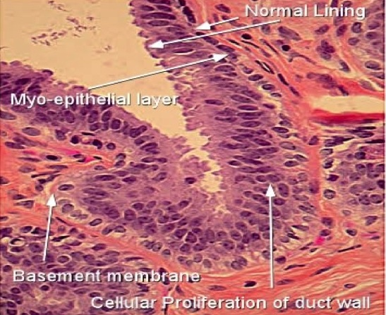 ossiuri rimedi naturali cancer pulmonar quimioterapia