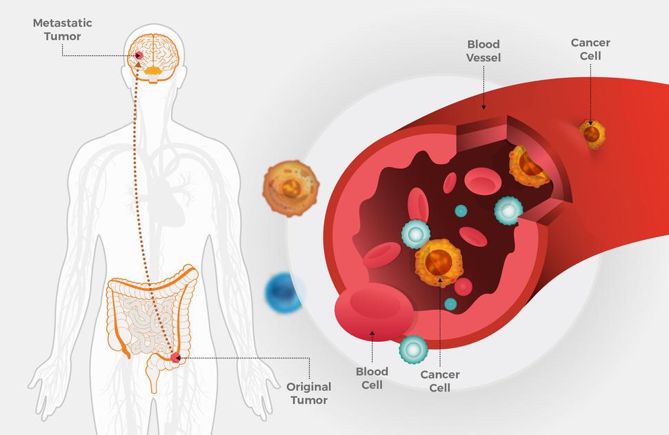 rectal cancer metastasis sites