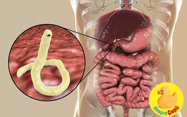 paraziti piele simptome