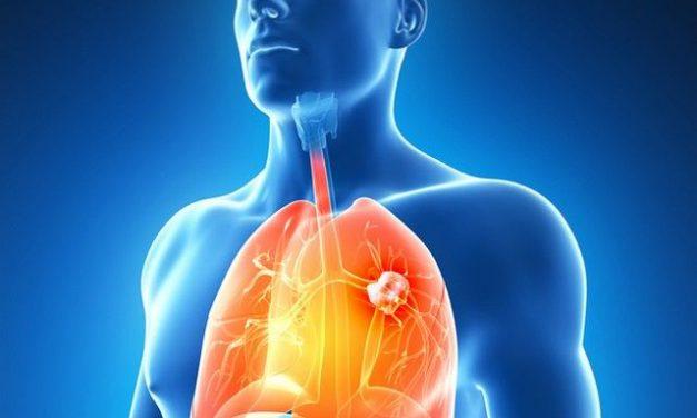 Numărul femeilor diagnosticate cu cancer pulmonar cauzat de fumat, în creștere alarmantă