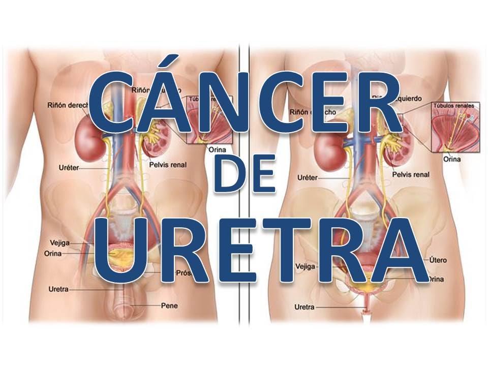 cancer de uretra hombre sintomas