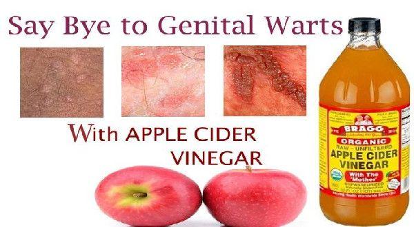 hpv warts treatments
