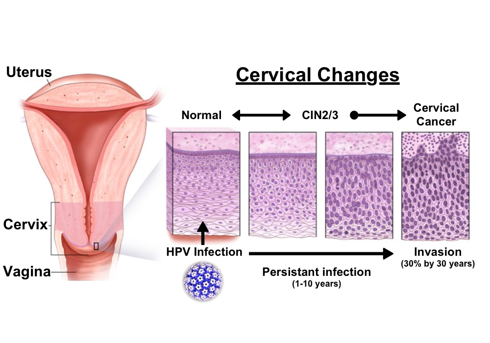 hpv cervical cancer pictures laryngeal papillomatosis treatment guidelines