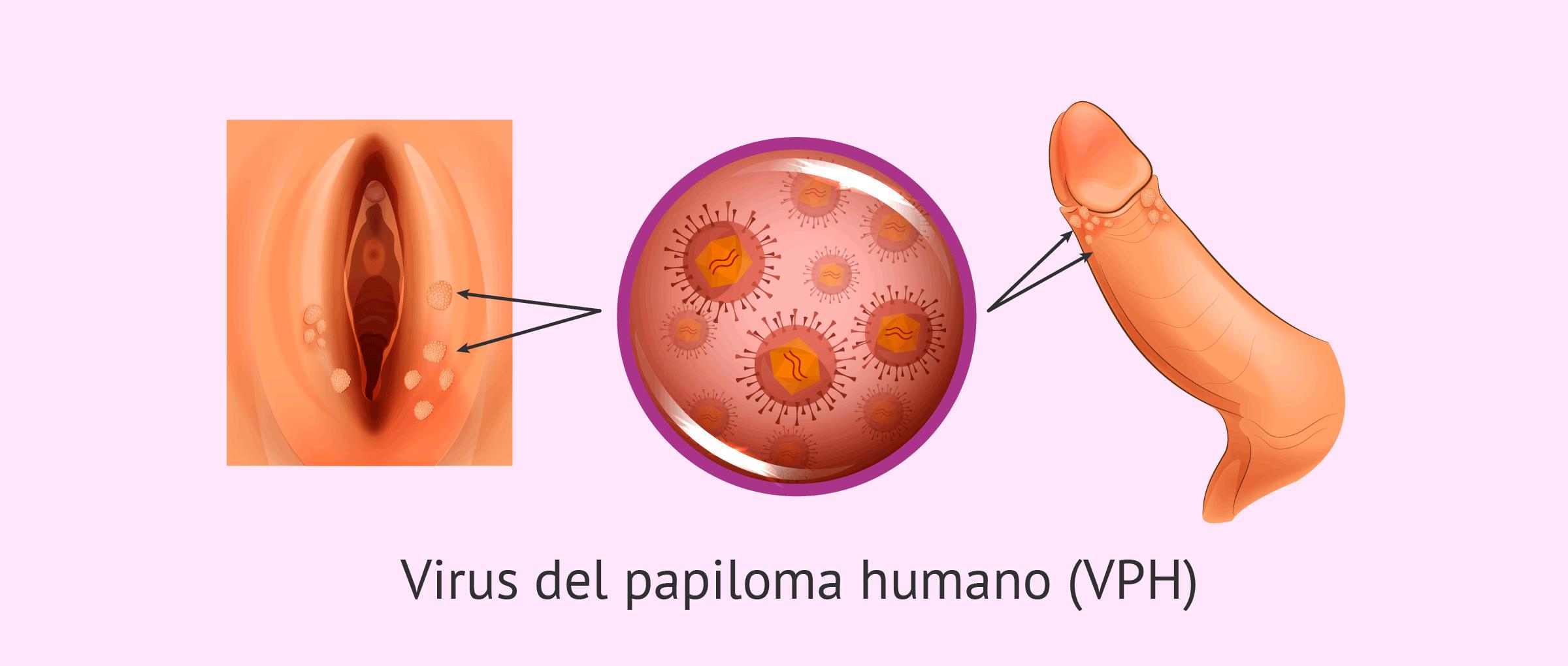 cum de a proteja împotriva paraziților intestinali