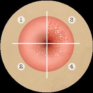 papillomavirus homme porteur a vie