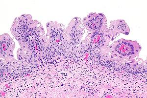 papilloma of bladder que es l papiloma humano