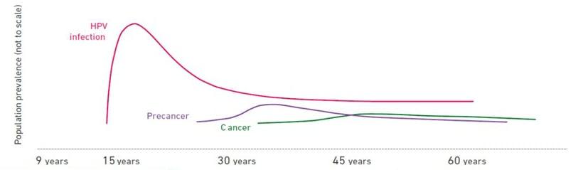 hpv cervical cancer procedure tricouri 20 cm records parazitii