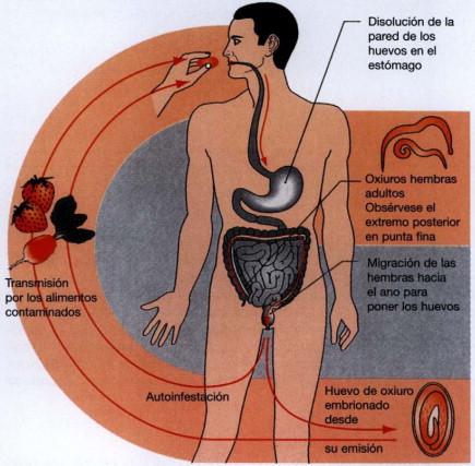 que enfermedad es la oxiuriasis cancerul bacterian al marului