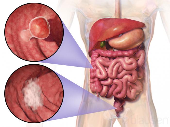 cancer la colon tratament