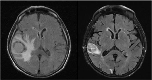 endometrial cancer brain metastases