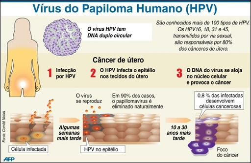 papiloma virusul uman (hpv) hpv high risk colposcopy