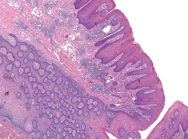 papilloma of tongue histopathology
