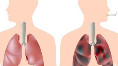 detoxifiere fumatori