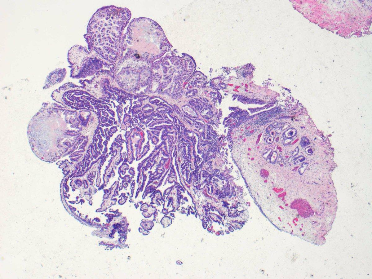 papillary lesion prostate papiloma intraductal mama gpc