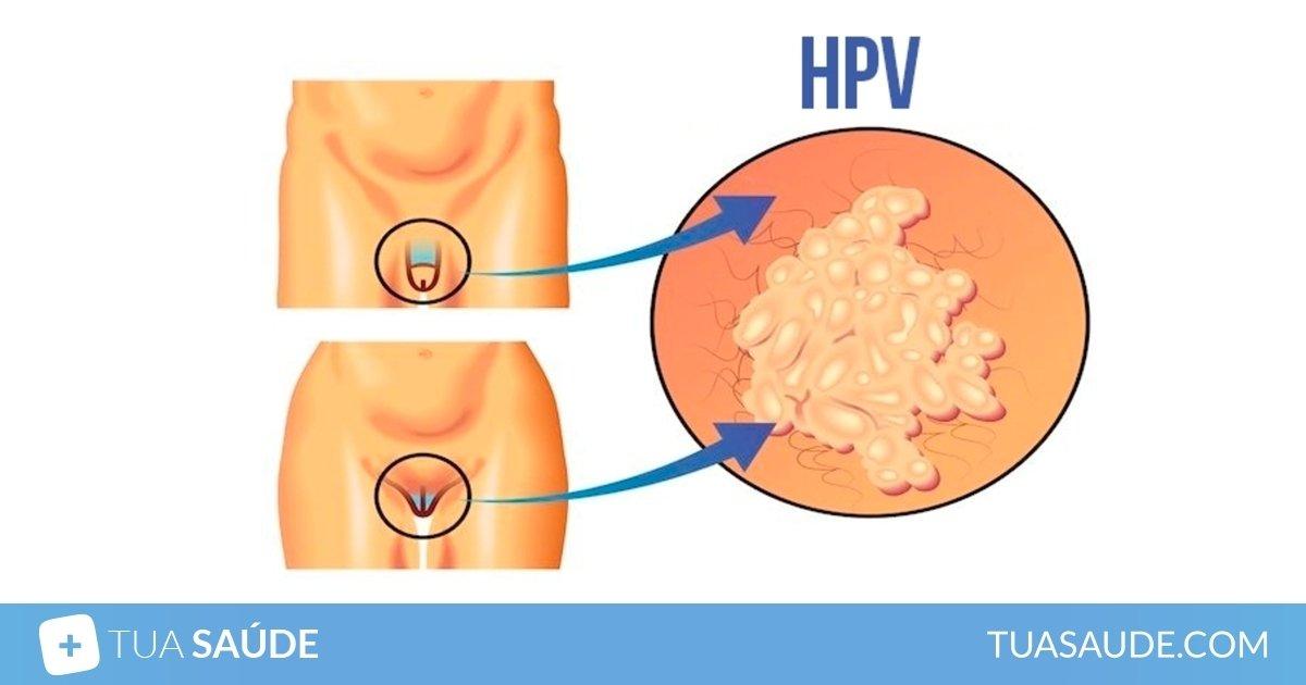 virus do papiloma humano sintomas dysbiosis depression
