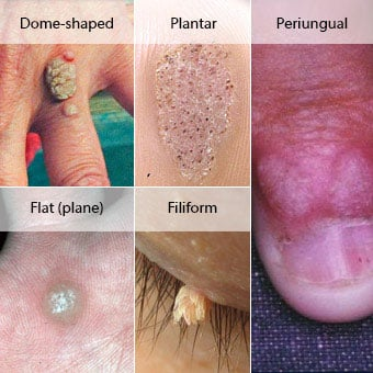 hpv wart removal cancer de col uterin cin3