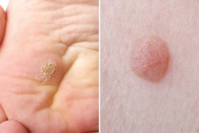virus del papiloma humano sintomas que es papiloma humano como se transmite