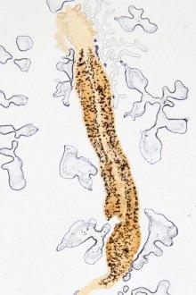 virus hpv e colposcopia