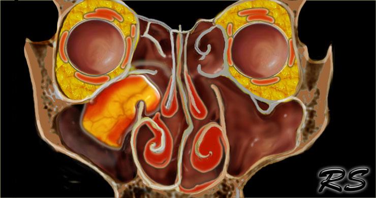 inverted papilloma and nasal vestibular papillomatosis large