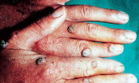 human papilloma virus lythat vaccino papilloma virus maschi roma