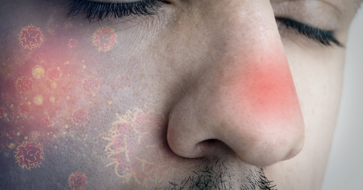 papiloma virus no nariz papillary urothelial cell carcinoma