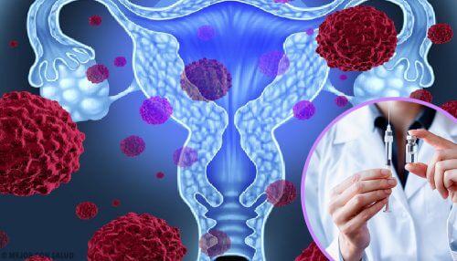 Ce sunt HPV 16 și 18? (Doctor`s Ask - Sfaturi Decembrie 2019)