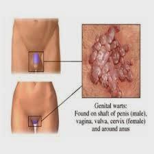 hpv regiao genital