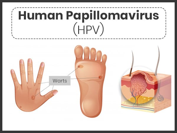 papillomavirus hpv causes