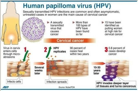 hpv virus cervix symptoms cancer nausea abdominal pain
