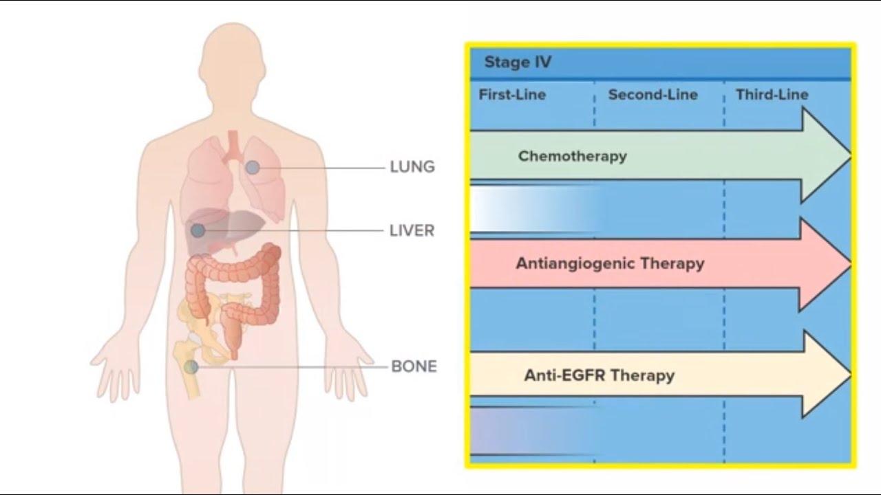 Bone metastases from colorectal cancer