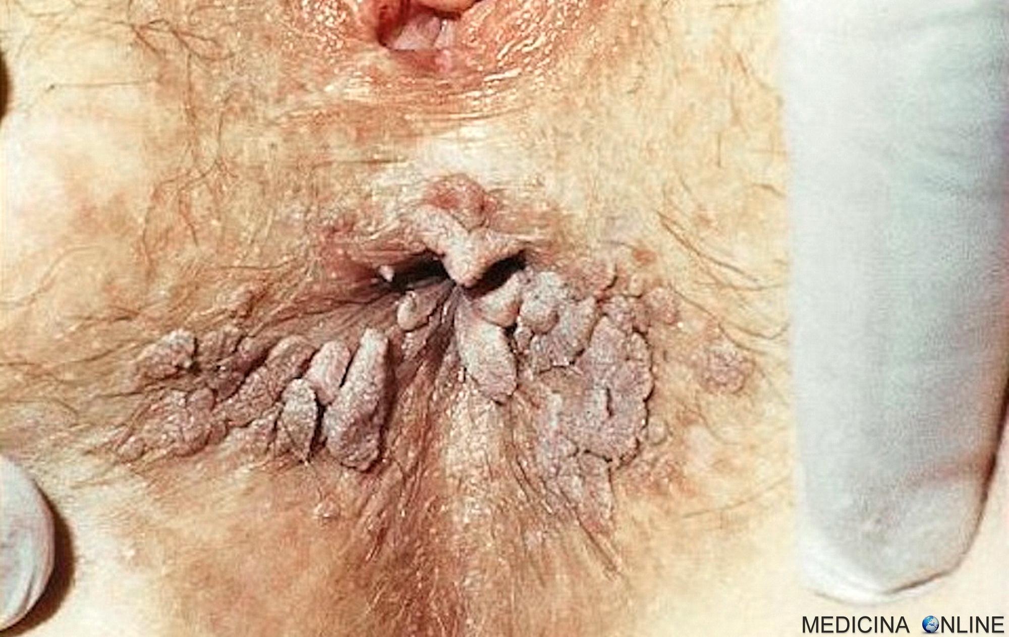 tempo di incubazione del papilloma virus