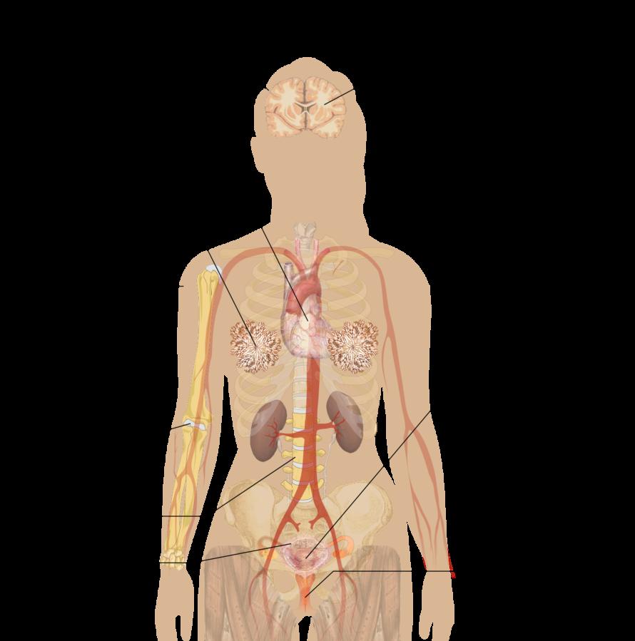 ovarian cancer knee pain papillary thyroid cancer diarrhea