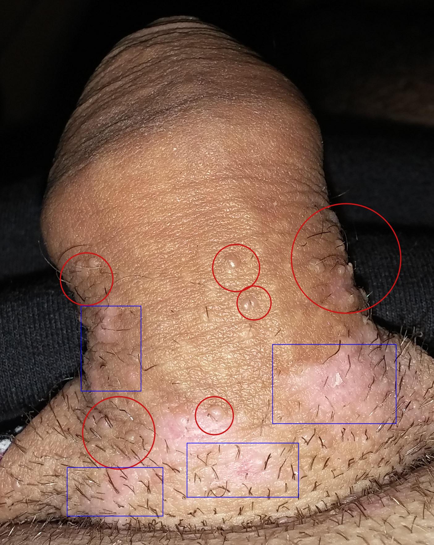 papillomavirus humain signes