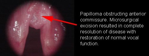 juvenile papillomatosis of larynx testicular cancer incidence