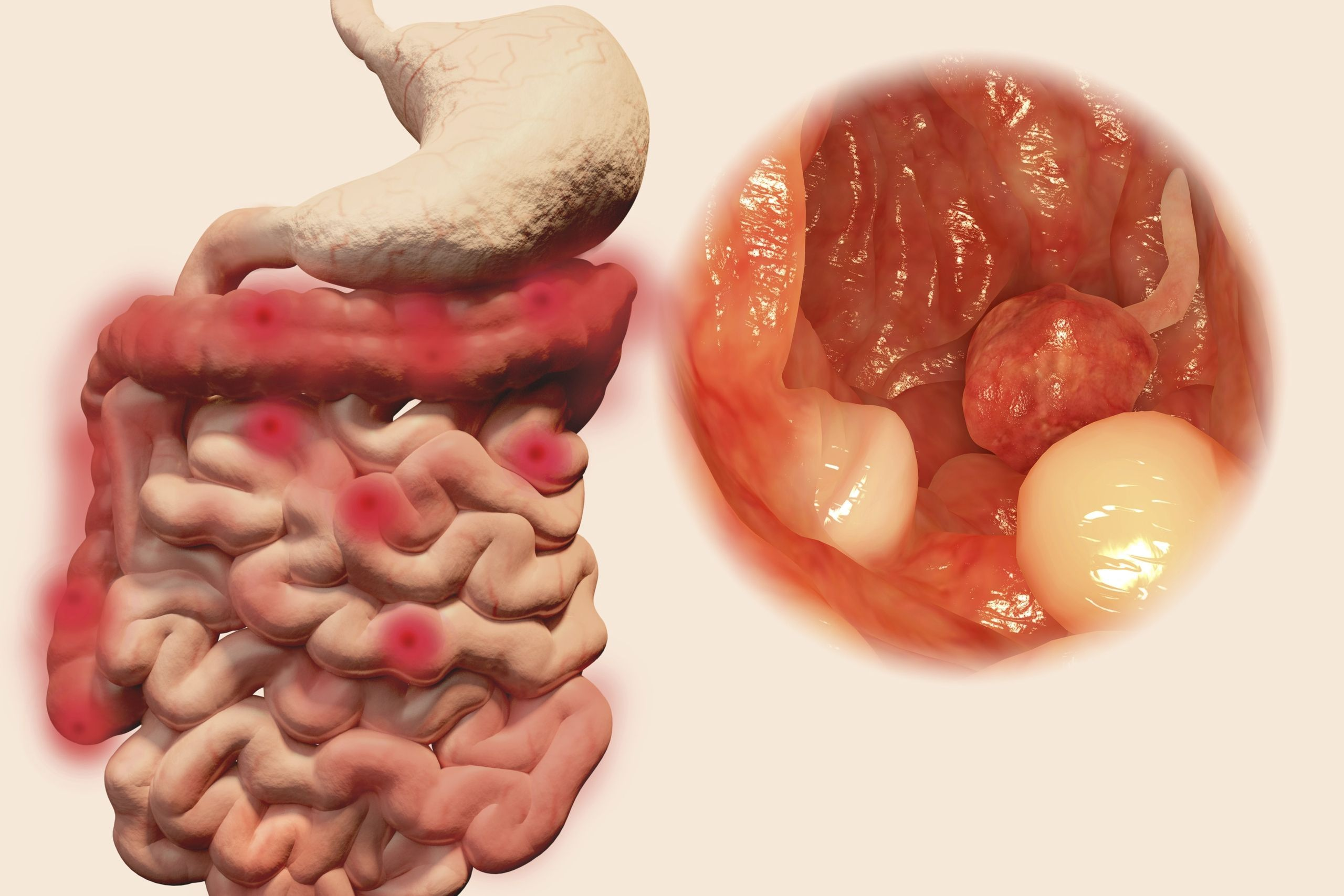 cancer colon homme symptome duct papilloma symptoms