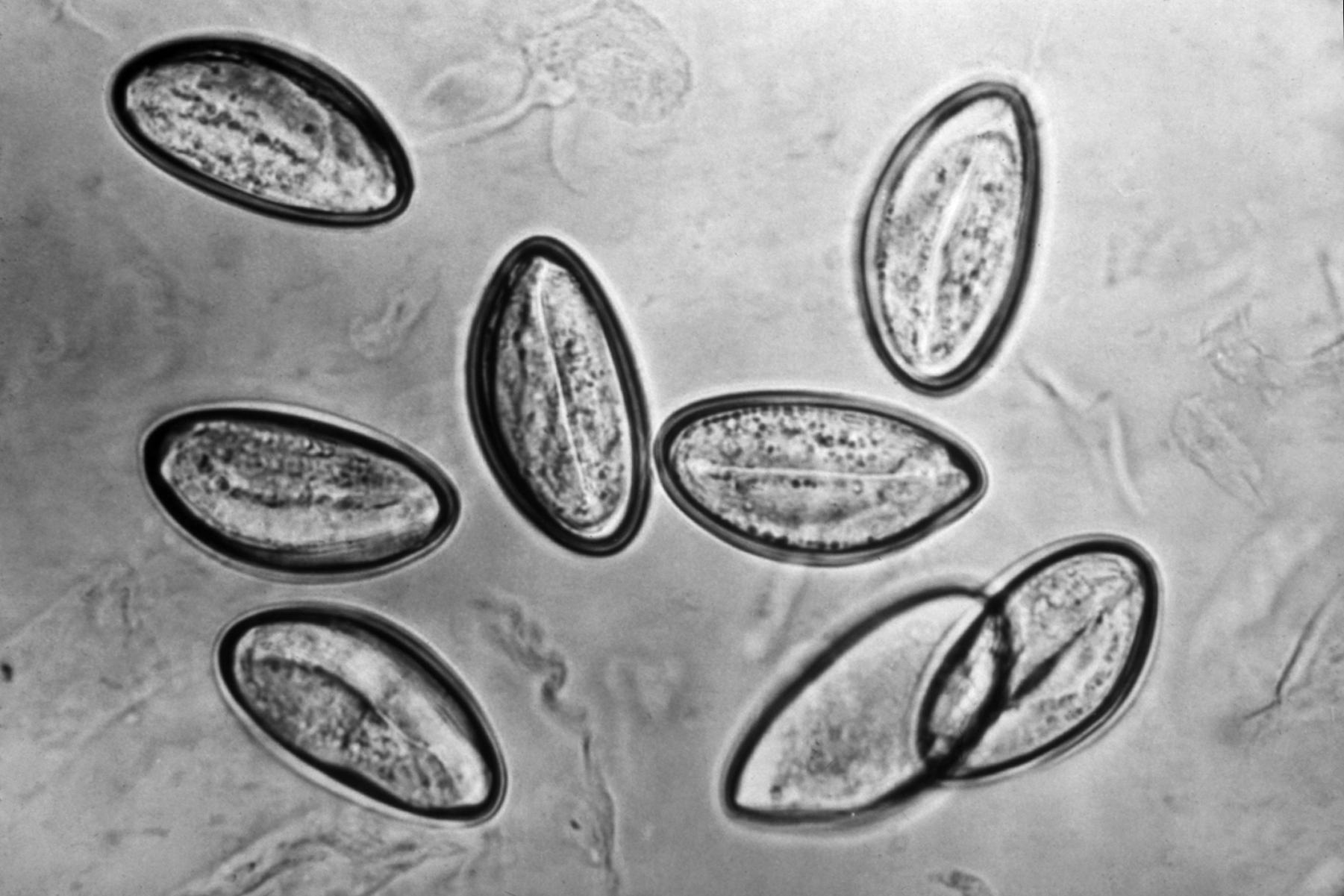 Trichinella spiralis and Enterobius vermicularis.pdf