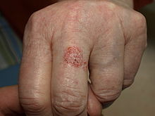 4. HPV Papiloame Veruci