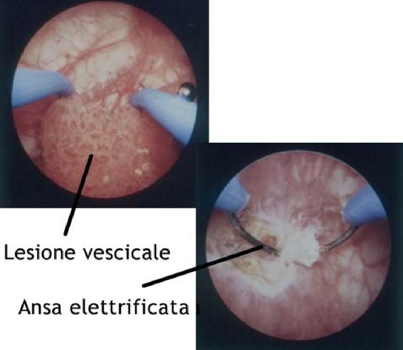Prostatita latentă uretrală cronică