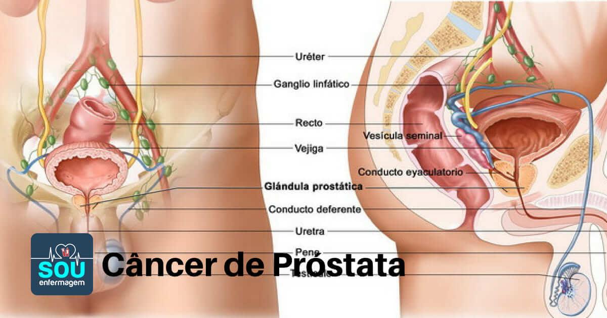 Motiv pentru biopsia prostatei