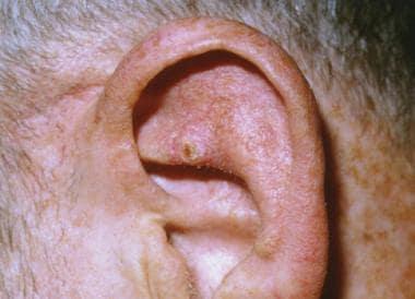cancerul unghiei papilloma vescicale t1