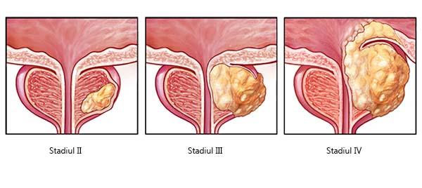 cancer la san femei simptome