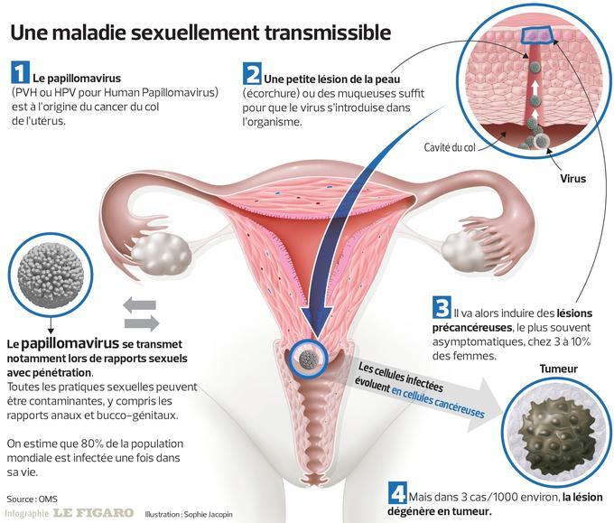 papillomavirus et cancer de la vulve