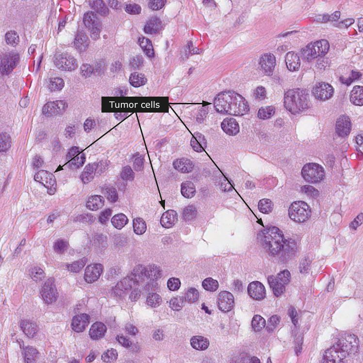 picture of hpv throat cancer benign papillomas