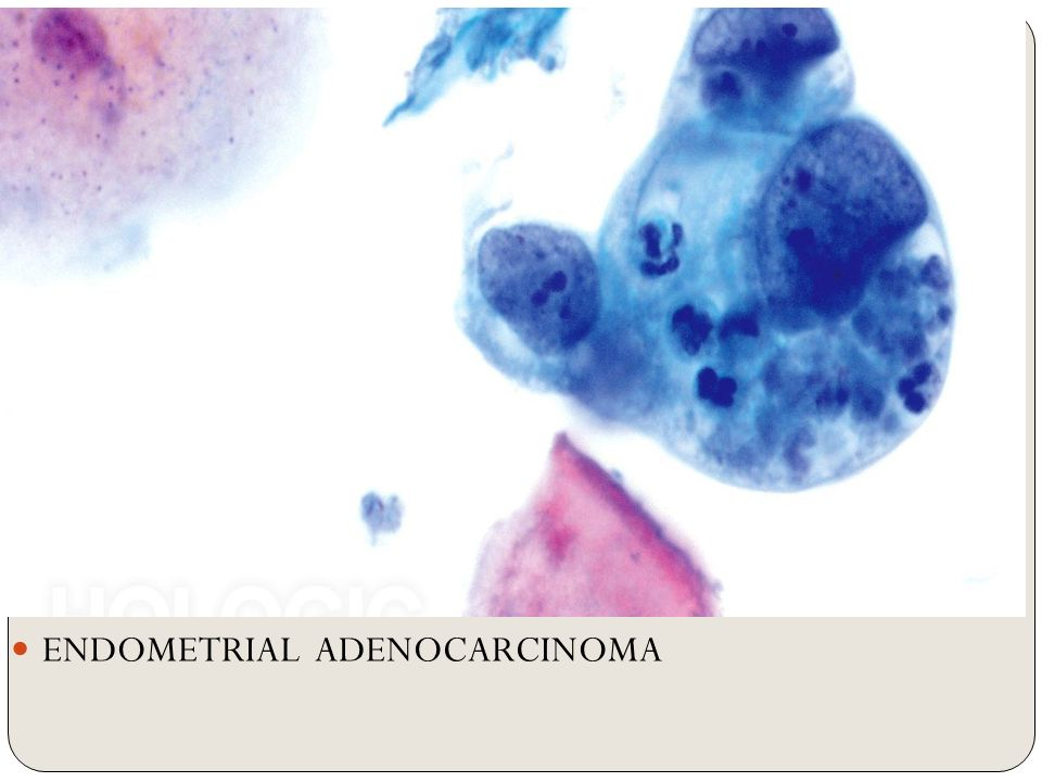 endometrial cancer on pap smear