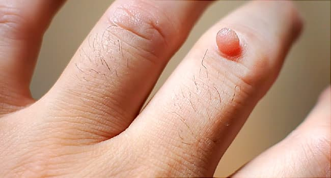 plantar wart on foot for years